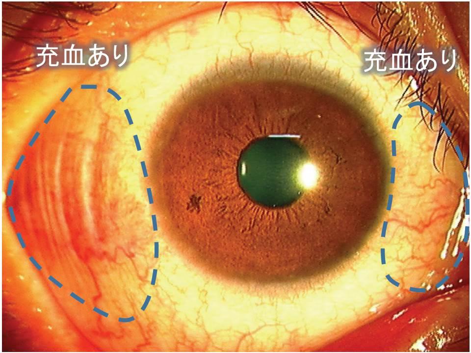 紫外線による目の充血 土佐やまもと眼科 安心の日帰り白内障手術