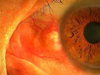 瞼裂斑炎1